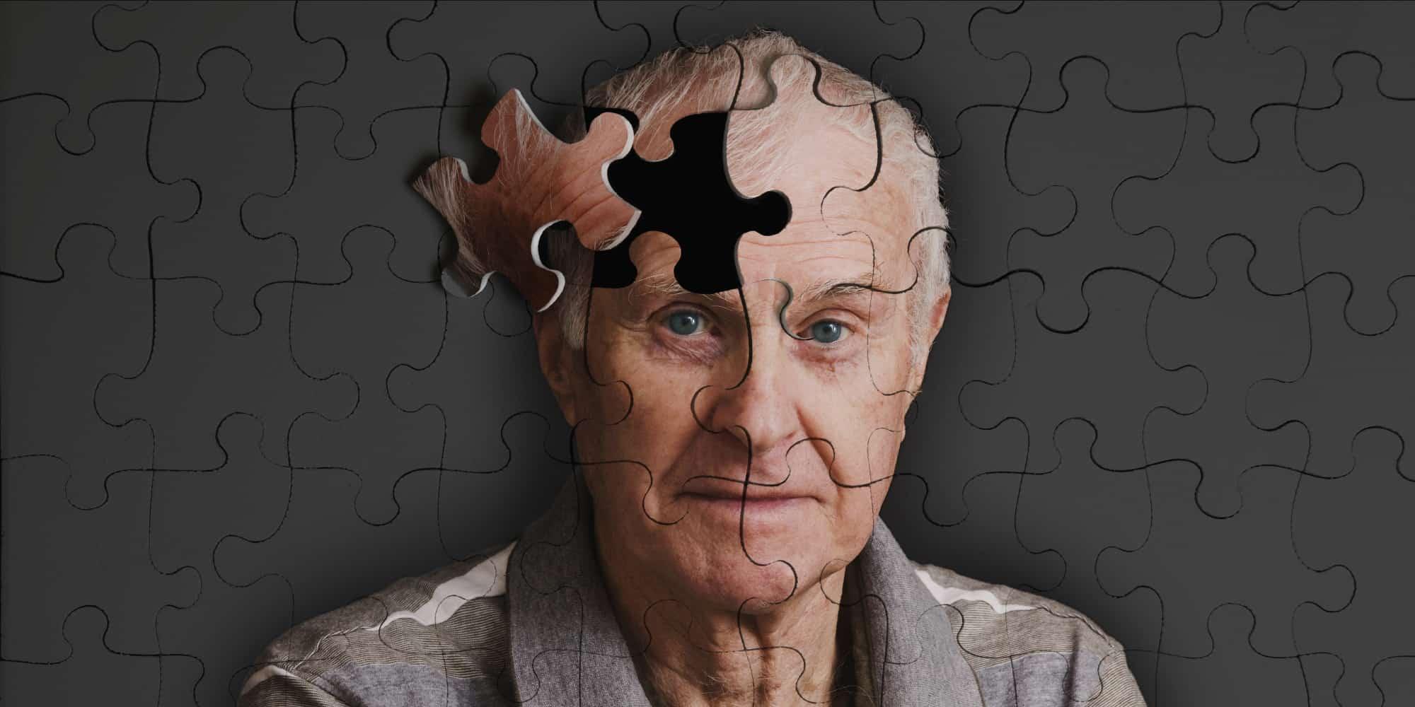 علل آلزایمر
